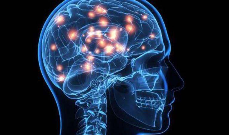 Brain-picture-565434